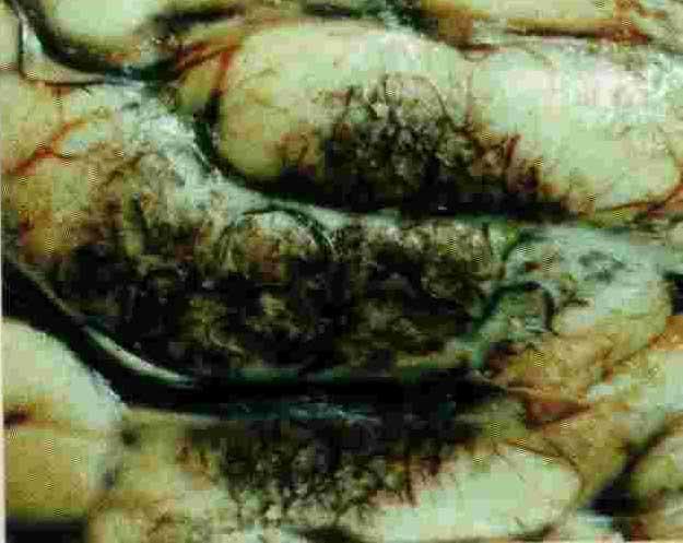 паразиты на коже человека видео